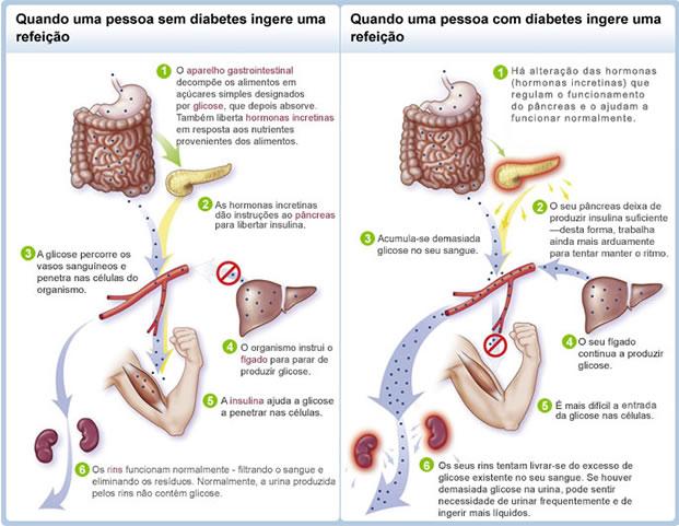 diabetes mellitus tipo 1 e 2 sinais e sintomas de diabetes